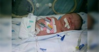Nació sin brazos, ni piernas y todo Facebook quiere ayudarlo