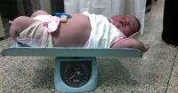 Nació el bebé más grande del mundo y pesa más de 6 kilos