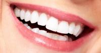 Blanquea tus dientes tú mismo con un ingrediente que tienes en la alacena