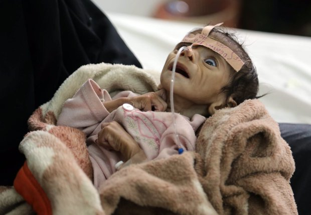 In this Tuesday, March 22, 2016 photo, infant Udai Faisal, who is suffering from acute malnutrition, is hospitalized at Al-Sabeen Hospital in Sanaa, Yemen. Udai died on March 24. Hunger has been the most horrific consequence of Yemenís conflict and has spiraled since Saudi Arabia and its allies, backed by the U.S., launched a campaign of airstrikes and a naval blockade a year ago. (AP Photo/Maad al-Zikry)