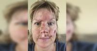 Las crudas fotos de una mujer con cáncer a la piel que te servirán como lección de vida