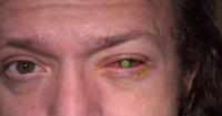 ¡Cuidado! Esto es lo que te podría pasar si te duermes con tus lentes de contacto