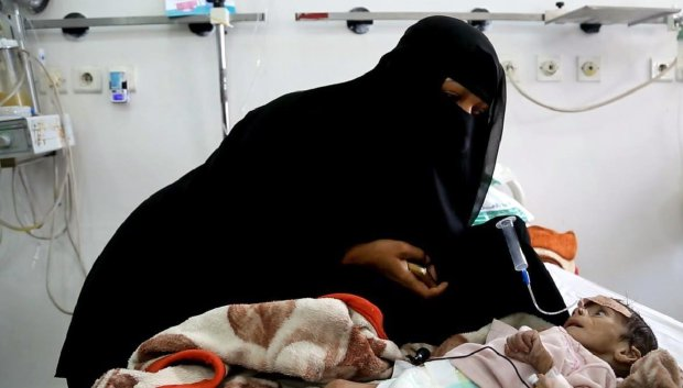 In this Tuesday, March 22, 2016 photo, Udai Faisal, who is suffering acute malnutrition is fed by his mother Intissar Hezzam at Al-Sabeen Hospital in Sanaa, Yemen. Hunger has been the most horrific consequence of Yemenís conflict and has spiraled since Saudi Arabia and its allies, backed by the U.S., launched a campaign of airstrikes and a naval blockade a year ago. The impoverished nation of 26 million people, which imports 90 percent of its food, already had one of the highest malnutrition rates in the world, but in the past year the statistics have leaped. (AP Photo/Maad al-Zikry)