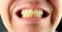 ¿Por qué los dientes se ponen amarillos y qué se puede hacer para evitarlo?