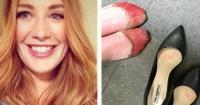 Pies con sangre por los tacos: la foto de una mesera que indignó a las redes sociales