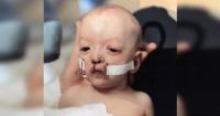 Los médicos dijeron que no viviría más de 2 años y mira lo que le ocurrió a este niño