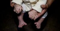 Bebé nació con 31 dedos y sus padres se enfrentan a la decisión de operarlo o no