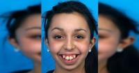 El increíble cambio de una joven tras una reconstrucción facial que duró seis años