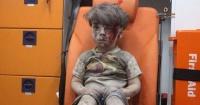 La desgarradora imagen del niño sirio herido que da la vuelta al mundo