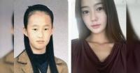 """El impactante """"antes y después"""" de coreanos que se someten a extremas cirugías estéticas"""