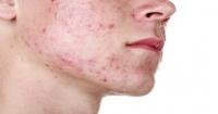 La noticia que todos los que sufren de acné querían escuchar