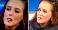 """La llamaban """"la chica de los dientes"""" y una cirugía la transformó por completo"""