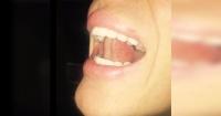El desconocido efecto en tu cuerpo de poner la lengua en el paladar y respirar profundamente