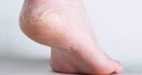 El económico truco casero para sanar los dolorosos pies agrietados