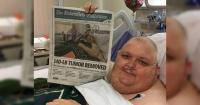 Le dijeron que solo estaba gordo y luego le extirparon un tumor de 59 kilos que nació de un vello encarnado