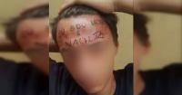 La cruel verdad tras el caso del supuesto ladrón castigado con un tatuaje en la frente