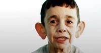 El drama del niño sirio que tiene el aspecto de un anciano de 70 años