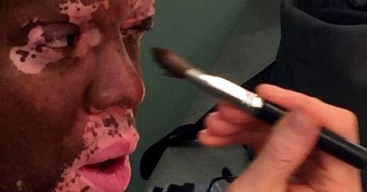 Periodista se maquilla todos los días para ocultar las manchas que cubren su rostro