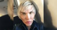 """""""Ken Humano"""" muestra las costillas que le quitaron y sus seguidores exigen que elimine la foto"""