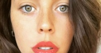 Así se ve Daniela Aránguiz con sus nuevos labios