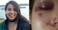 """""""Me azotó la cara contra la pared"""": la brutal golpiza a una estudiante tras responder a acoso callejero"""