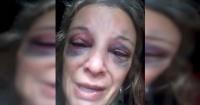 El desgarrador relato de una mujer que fue agredida con un ladrillo en la cabeza por negarse a tener sexo