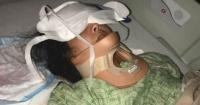 """""""KikiChallenge"""": joven de 18 años terminó en estado crítico tras realizar el desafío viral"""