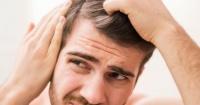 ¿Eres joven y tienes canas?: El estrés y la mala alimentación te pueden estar afectando