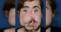 """""""Ahora puedo sonreír"""": reconstruyen rostro de joven que intentó suicidarse"""