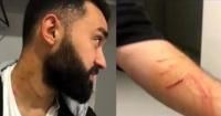 ¿Futbolista o delincuente?: jugador agredió a sus rivales con un cuchillo en pleno partido